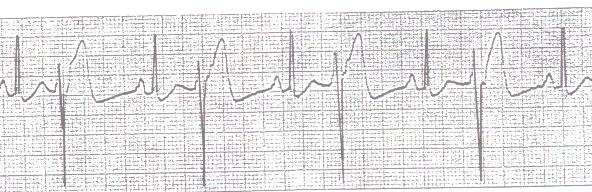 Bigeminy PVCs (every other beat is a PVC)